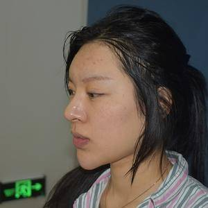 定制鼻综合
