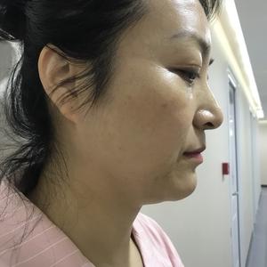 北京炫美.线肽水光.抗衰黑科技