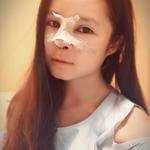 其实我是有点排斥做假体隆鼻的,不过为了对自己的鼻子的改变,我决定下定决心...