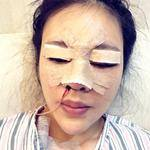 鼻子做得比较久了,感觉不好看了,面诊的时候医生说,我的鼻头有点后缩,鼻子...