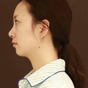 当你做了鼻综合,你才知道美是多重要
