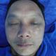 脸部修复案例两个月效果