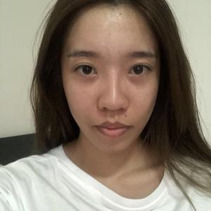 北京炫美.AD自然脸全脸整形套餐