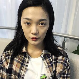 北京炫美ST自体脂肪面部填充
