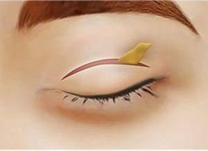 哪种情况需要做眼部修复手术?
