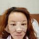 给我面诊设计的时候,自己也让医生顺便帮我看面部凹陷的问题,这几年看着一年比一年老,而且也是看到朋友做...