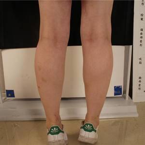 晨曦的大腿塑形日记