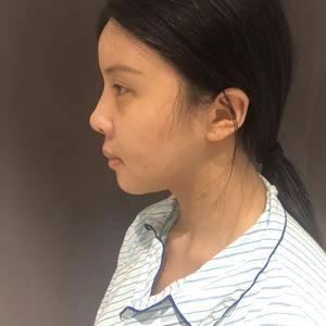 做完鼻综合,我看到了自己的变化