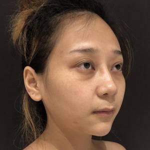 福州鼻修复 取假体 肋骨隆鼻