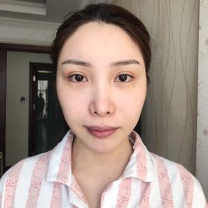 【北京当代医疗美容】线雕第一天!
