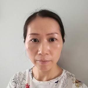 深圳健丽不开刀祛眼袋