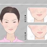 打瘦脸针有什么优点?