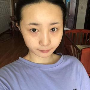 我在重庆当代整形做了个双眼皮切开手术