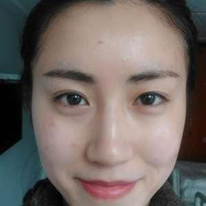 邵玉芳医生,双眼皮+内眼角手术