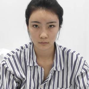 炫美埋线双眼皮+鼻综合,堪称换头术