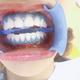 补上2张冷光美白+洗牙之后的牙齿照片,不然宝宝老是问我怎么没有对比图我都懒得回复了,手机码字真的很累的...