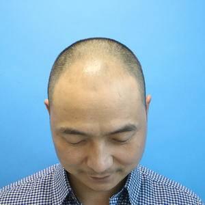 长沙美研整形:毛发种植