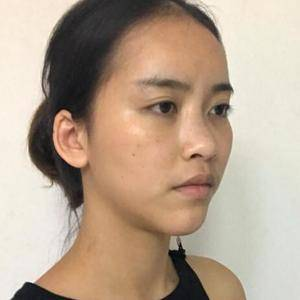 肋软骨隆鼻术
