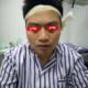 【深圳华侨种植眉毛术后当天】我其实很早以前就对自己的眉毛不满意了,只是不知道有植眉这个技术。后来知道...