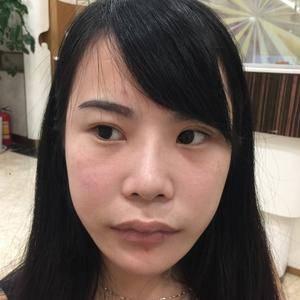 新型微创无痛全脸埋线提升