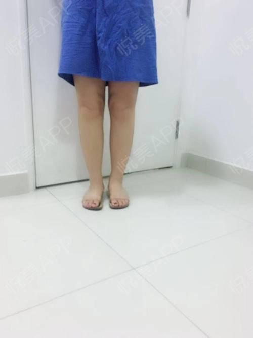 【广州利美康-瘦腿针注射后第147天】这次我的腿变化好明显啊,当然也可能是心理因素,总觉得腿瘦了好多,感觉照片上面也比之...