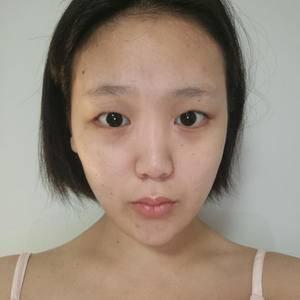 硅胶 隆鼻