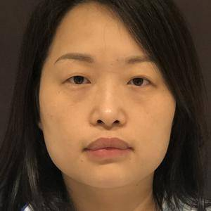 福州假体取出 鼻修复手术