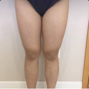 水动力大腿吸脂