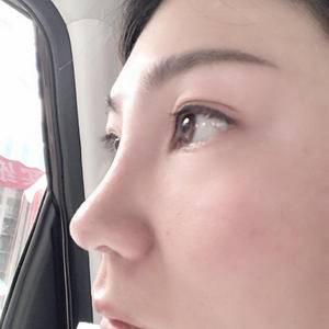 综合隆鼻-BSK