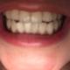 感觉洗干净了 但是没有美白的作用 建议想美白牙齿还是不要做这个 这个只是清洁