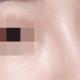 啦啦啦,自从做完鼻子后颜值都上升了许多,家人们都夸我的鼻子好看,好开心~自从做完鼻子,每天都期盼鼻子...