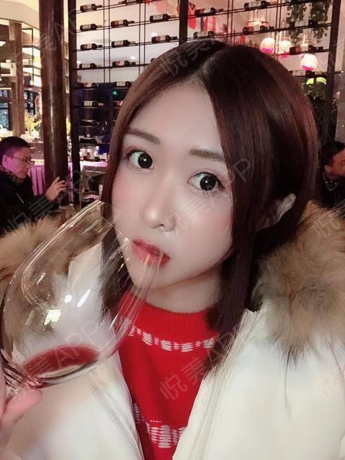 都说女人喝点红酒好,美容养颜,所以今天的饭局也忍不住贪杯了啦。再来给大家看看我的恢复情况,很好没有复发哟,配上喝酒后的...