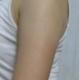 做完吸脂半个月了,其实身体其他部位都不胖,就是手臂比较粗,显得很不协调,做运动什么的也没见瘦,为...