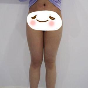 吸脂瘦大腿 厦门薇格吸脂瘦大腿