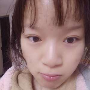 双眼皮+内眼角