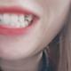 记录一下种牙的过程像我这样牙齿已经掉了 要么选择烤瓷牙 但是旁边两颗都要磨小的 烤瓷牙套上去 我实在不想...
