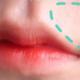 激光脱唇毛那天,医生先给我把唇毛刮掉,,清洁了一下嘴唇上面的皮肤,要保持干净,然后,医生给我涂了点胶...