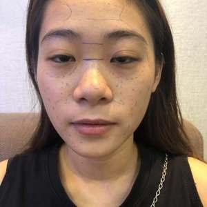 玻尿酸-玻尿酸隆鼻