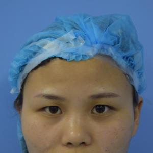鼻综合手术日记
