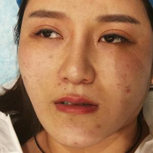 黄金微针 磨皮级别祛疤 修复各种疤痕