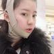 今天是下颌手术3个月了也是正月春节期间,回到老家亲戚朋友都说我是不是瘦了很多,也好看了很多,听了真的...