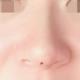 做了线雕隆鼻,做的时候打了麻药没有感觉到疼,医生的技术也不错。做完之后鼻子立体好看了很多。其实...
