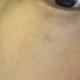 基本掉伽了,本来很少很浅,只是眼下有一大块,眼尾有一些点点,但是现在眼尾没了,眼下还是一大块,当天做...