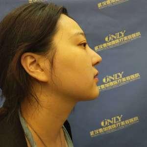 复杂型鼻综合