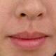 我是个毛发比较旺盛人尤其是特显眼的唇毛,了解到脱毛可以让我摆脱这种尴尬,于是我毫不犹豫的来做了唇部脱...