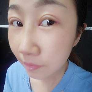 内眼角手术