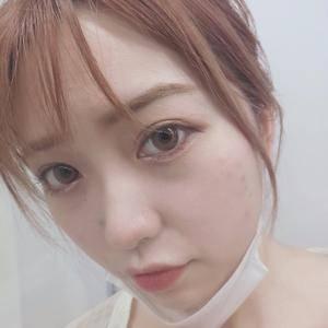 美贝尔鼻综合